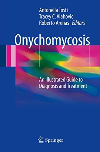 onychomycosis kruidvat