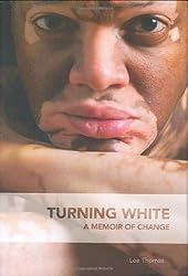 Natural Treatment for Vitiligo / Leucoderma | Fettle Genie