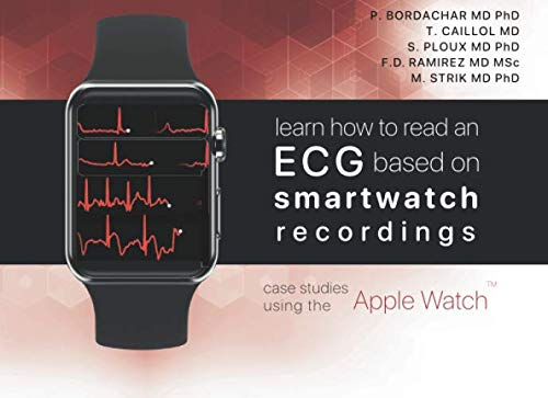 Learn how to read an ECG based on smartwatch recor...