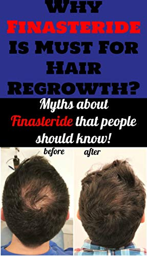 Why Finasteride Is Must For Hair Regrowth?: Myths About Finasteride That People Should Know (English Edition)