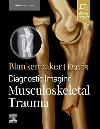 Compare Textbook Prices for Diagnostic Imaging: Musculoskeletal Trauma 3 Edition ISBN 9780323793933 by Blankenbaker MD  FACR, Donna G,Davis MD  FACR, Kirkland W.