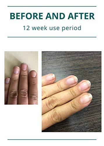Beauty Shopping Maxus Nails Strengthener 2.0, Strengthening Nail Polish, Nail
