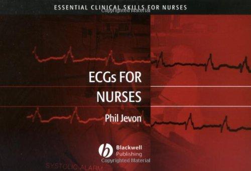 ECGs for Nurses (Essential Clinical Skills for Nurses Book 1)