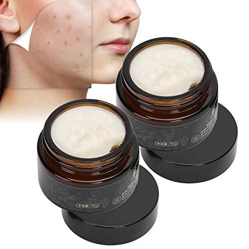 Crema para el acné a base de hierbas, aceite de control que elimina el acné, crema facial reparadora calmante antiacné