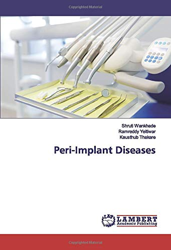 Peri-Implant Diseases