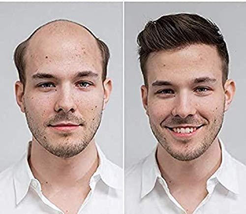 Toupet mit natürlichem Haaransatz, 100 % Echthaar, europäisches Haarsystem, dünne Haut, für Herren, 20,3 x 22,9 cm, Haarersatz-System, Haarteil, natürliche Farbe