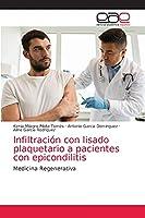 Infiltración con lisado plaquetario a pacientes con epicondilitis: Medicina Regenerativa