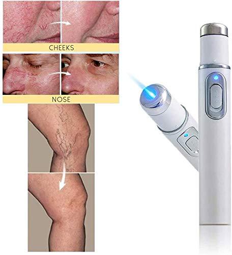 DXX Akne-Laser-Stift Tragbare Faltenentfernungsmaschine Langlebiger Weicher Narbenentferner Blaue Therapie Lichtstift-Massage Besenreiser 1St.