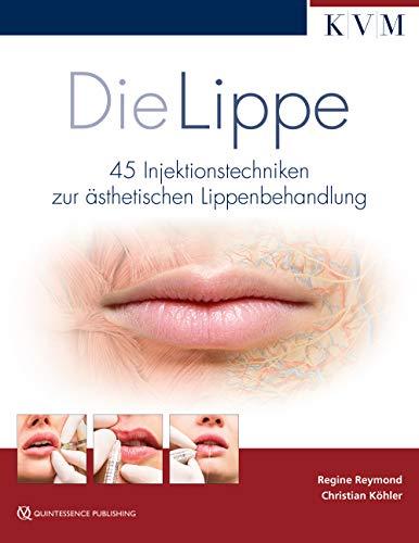 Die Lippe: 40 Injektionstechniken zur ästhetischen Lippenbehandlung