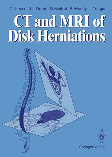 CT and MRI of Disk Herniations (English Edition)
