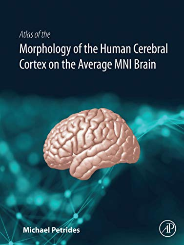 Atlas of the Morphology of the Human Cerebral Cortex on the Average MNI Brain (English Edition)