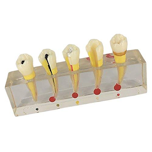 Sharplace Modelo de Resina de Dientes de Enfermedad Modelos Materiales Educativos Médicos