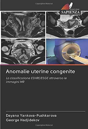 Anomalie uterine congenite: La classificazione ESHRE/ESGE attraverso le immagini MR