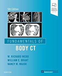 Fundamentals of Body CT by Webb / Brant