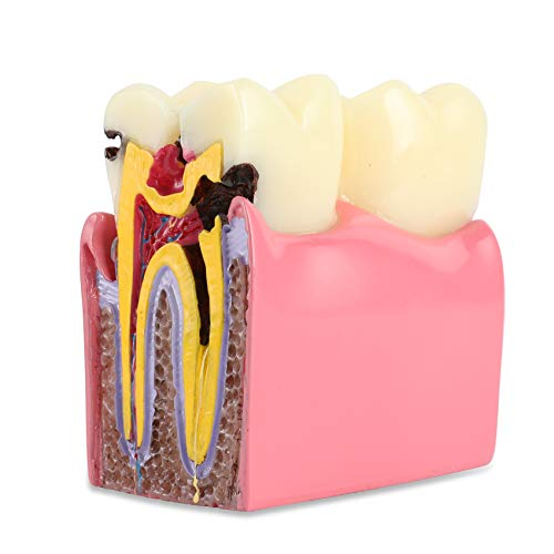 Dental Caries Tooth Model 6 Times Decay Teeth Comparative Study Model, Caries Bilateral Comparison Pathology Teeth Model Teaching Learning Tools for Dentist, Patient Education and Explanation