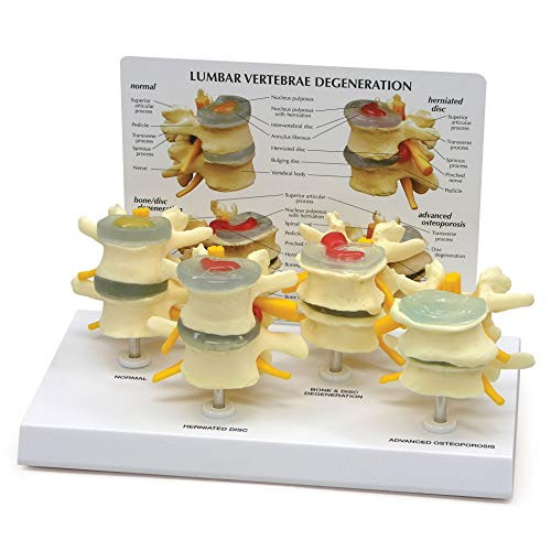 Spine Model   Human Body Anatomy Replica of Four-Stage Vertebrae Conditions for Doctors Office...