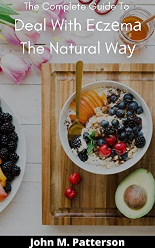 The Complete Guide To Deal With Eczema The Natural Way (English Edition)