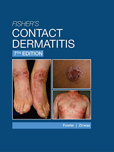 Fisher's Contact Dermatitis - 7th Edition