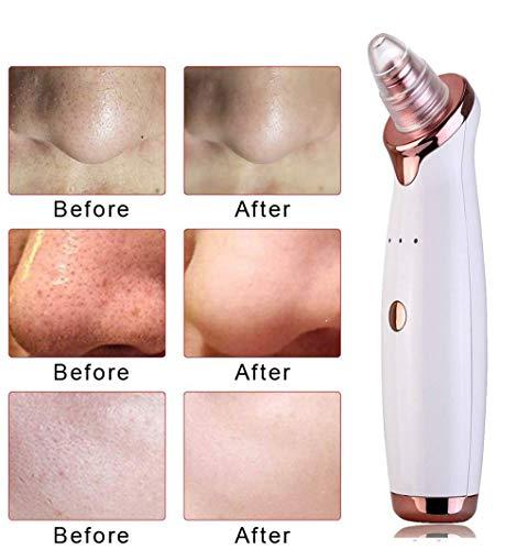 Aspirateur de pores pour éliminer les points noirs,kit d'extraction de machine d'aspiration de points noirs pour nettoyeur de pores électriques pour l'élimination de la graisse des boutons d'acné(blan