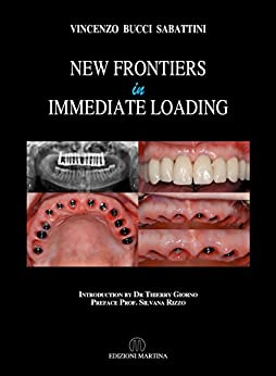New Frontiers In Immediate Loading by [Vincenzo Bucci Sabattini]