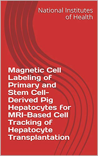 Magnetic Cell Labeling of Primary and Stem Cell-Derived Pig Hepatocytes for MRI-Based Cell Tracking of Hepatocyte Transplantation (English Edition)