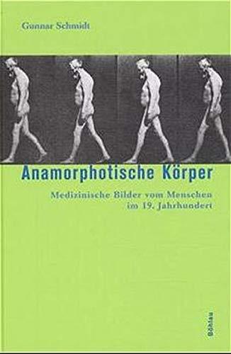 Anamorphotische Körper. Medizinische Bilder vom Menschen im 19. Jahrhundert