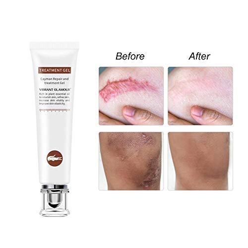 Crema de eliminación de cicatrices Gel avanzado de cicatrices Crema reparadora de la piel para rostro, cuerpo, estrías, cesáreas, quirúrgicas, quemaduras, acné, cicatrices antiguas y nuevas, 20 g