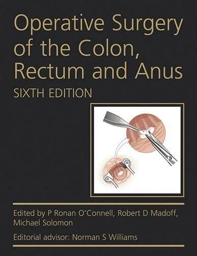 Operative Surgery of the Colon, Rectum and Anus