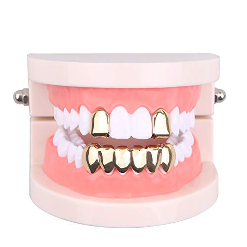 gold caps for teeth - 4