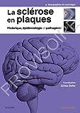 La sclérose en plaques - Epidemiol Et Pathogenie
