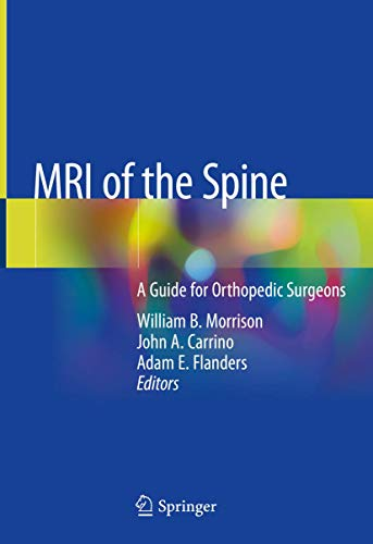 Compare Textbook Prices for MRI of the Spine: A Guide for Orthopedic Surgeons 1st ed. 2020 Edition ISBN 9783030436261 by Morrison, William B.,Carrino, John A.,Flanders, Adam E.