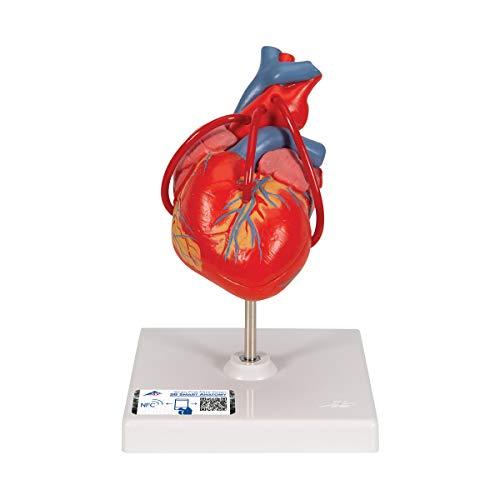 3B Scientific Menschliche Anatomie - Klassik-Herz mit Bypass, 2-teilig + kostenloser Anatomiesoftware - 3B Smart Anatomy