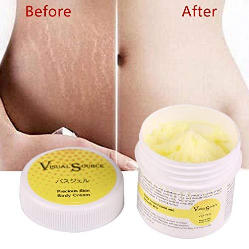 Vergetures crème de réparation, les rides et la cicatrice d'enlèvement de la crème crème pour le corps nutrition pour Slack Line abdomen lissage post-partum
