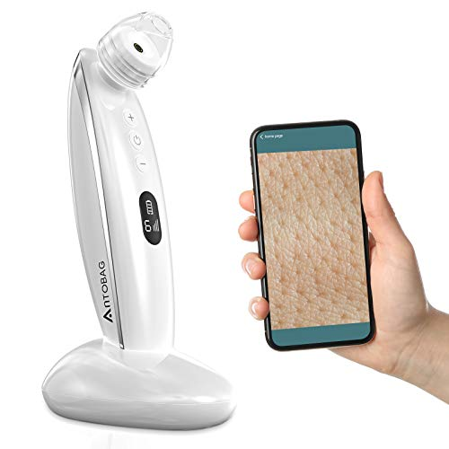 Blackhead Remover Pore Vacuum, Antobag 5.0 Megapixels Visual 20X Microscope Camera Upgraded Pore Cleaner Kit with 6 Replaceable Tips