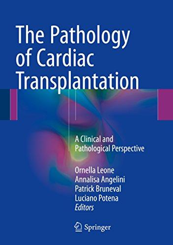 The Pathology of Cardiac Transplantation: A clinical and pathological perspective (English Edition)