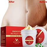 Stretch Marks Scar Removal Smooth Skin Repair Cream Effectively Remove Pregnancies Grain Improving Flabby Dark Skin For Pregnant Skin