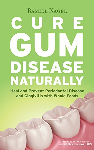 Cure Gum Disease Naturally: Heal and Prevent Periodontal Disease and Gingivitis with Whole Foods (English Edition)