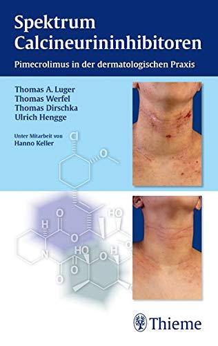 Spektrum Calcineurininhibitoren: Pimecrolimus in der dermatologischen Praxis