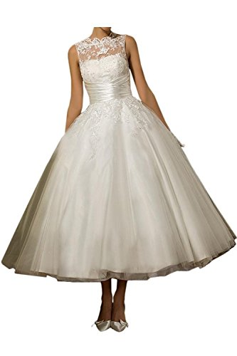 YASIOU Hochzeitskleid Standesamt Weiß Damen Teelänge A Linie Prinzessin Vintage Spitze Hochgeschlossen Brautkleider Hochzeitskleider