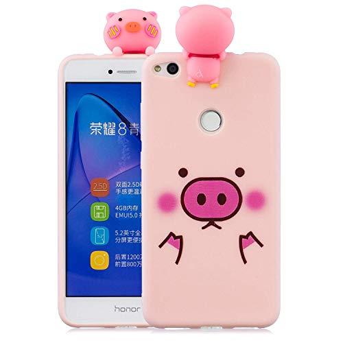 Wubao Funda Huawei P8 Lite (2017) Silicona 3D Animal Carcasa Huawei P8 Lite (2017) Antigolpes Suave Ultrafina Flexible TPU Case Protectora Bumper para Huawei P8 Lite (2017) - Cerdo