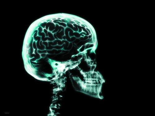 Brain in Skull Poster