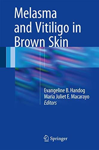 Melasma and Vitiligo in Brown Skin