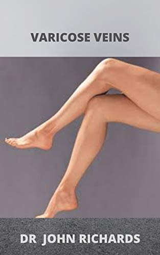 Natural Remedies For Varicose Veins: A Simple guide to all there is to know about varicose veins as well as its natural remedy! (English Edition)