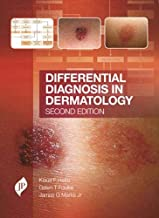 Differential Diagnosis in Dermatology: Second Edition