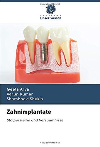 Zahnimplantate: Stolpersteine und Versäumnisse