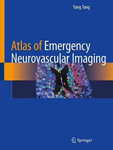 Atlas of Emergency Neurovascular Imaging