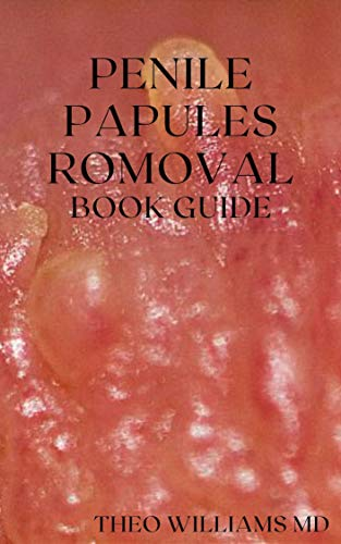 PENILE PAPULES REMOVAL BOOK GUIDE : The Ultimate Guide On How To Remove Pearly Penile Papules Using Natural Remedies (English Edition)