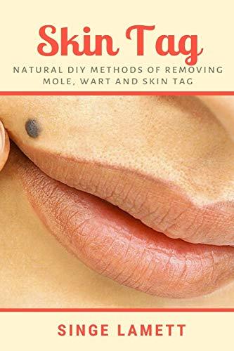 Skin Tag: Natural DIY Methods of removing Mole, Wart and Skin Tag