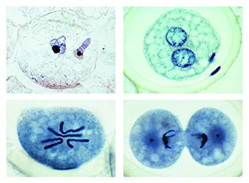 Biologie Mikroskopie Mikropräparate Serien_ Mitose und Meiose II