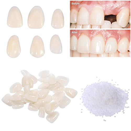 Temporary Tooth Repair Kit-Teeth Veneers for Fix the Missing Tooth Teaching,Thermal Fitting Beads for Filling the Broken Tooth and Teeth Gap, Resin Fake Teeth Crown